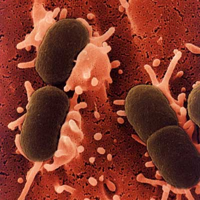 escherichia_coli-food-poisoning
